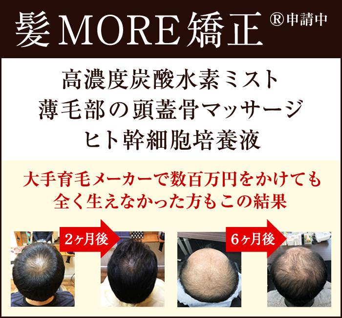 【髪MORE矯正】高濃度炭酸水素ミスト×薄毛部の頭蓋骨マッサージ×ヒト幹細胞培養液